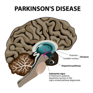 New drugs for Parkinson's disease